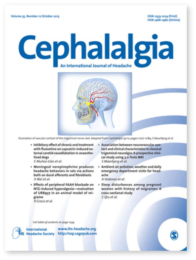 Cephalalgia Trigeminal Neuralgia
