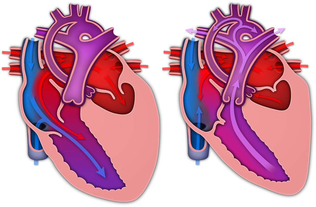 HLHS Heart with Arrows