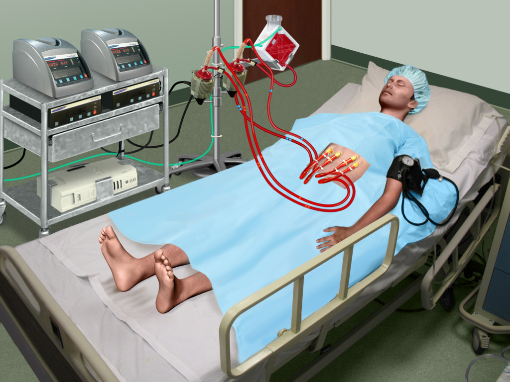 Patient on Centrimag with Oxygenator